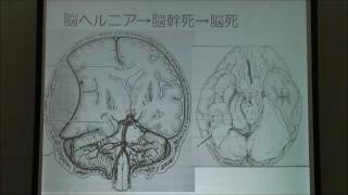 山田和雄 2/4 「脳死判定の現状」