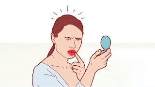 видео Вирус простого герпеса: что это такое, лечение, симптомы, причины, признаки