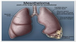 How Mesothelioma Cancer Affects You