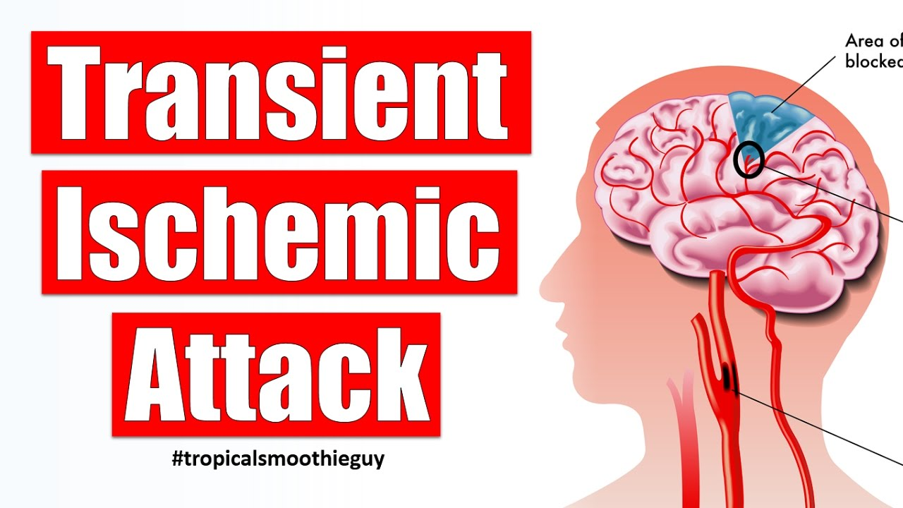 Ischemic attack: what is it and how to get rid of it 83