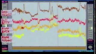 Работа мозга во время Трансцендентальной медитации