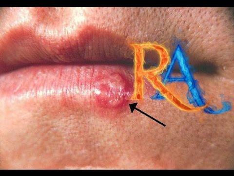 Herpes oral: MedlinePlus enciclopedia mdica