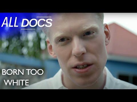 Born Too White: What It's Like To Have Albinism In Tanzania | Full Documentary | Reel Truth