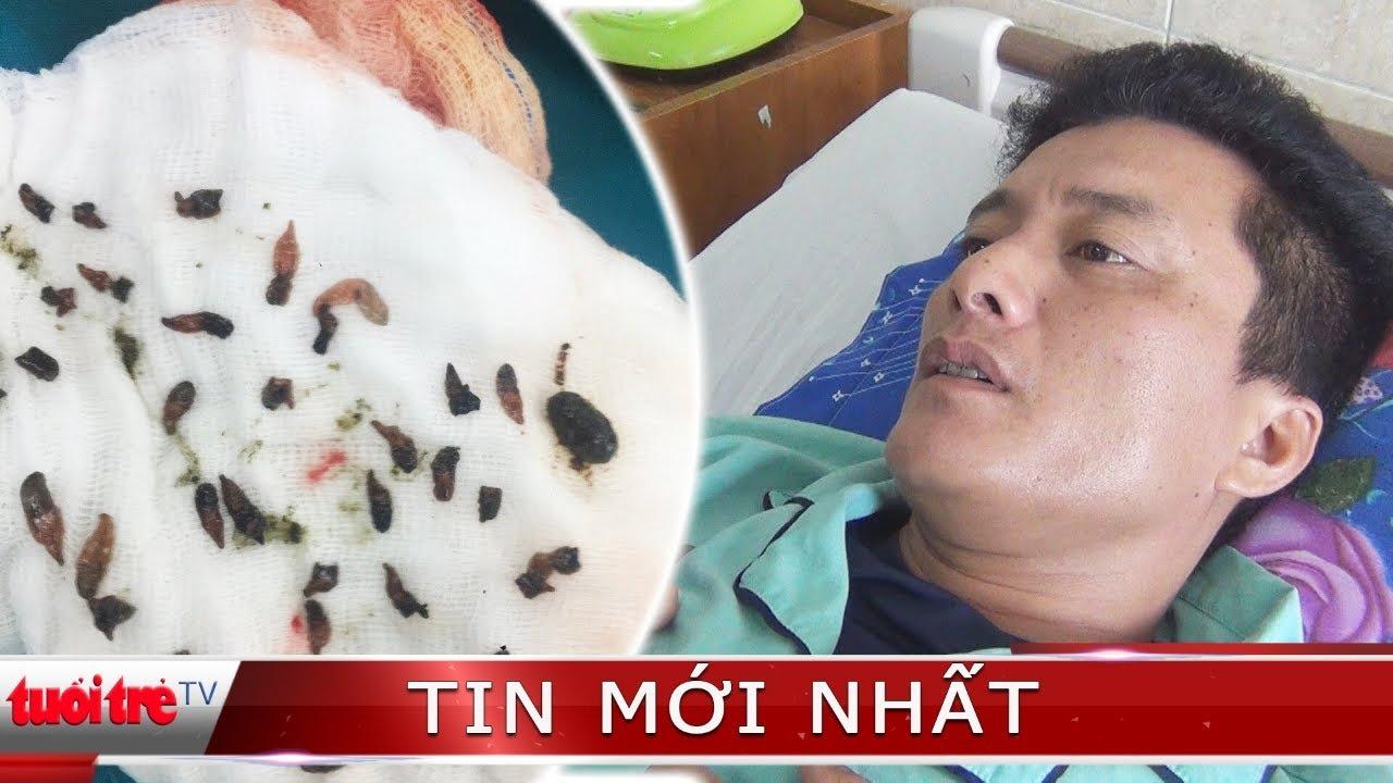 ⚡ NÓNG | Gắp cả ngàn con sán lá gan trong ống mật bệnh nhân