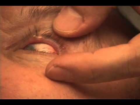 papilloma removal nyc