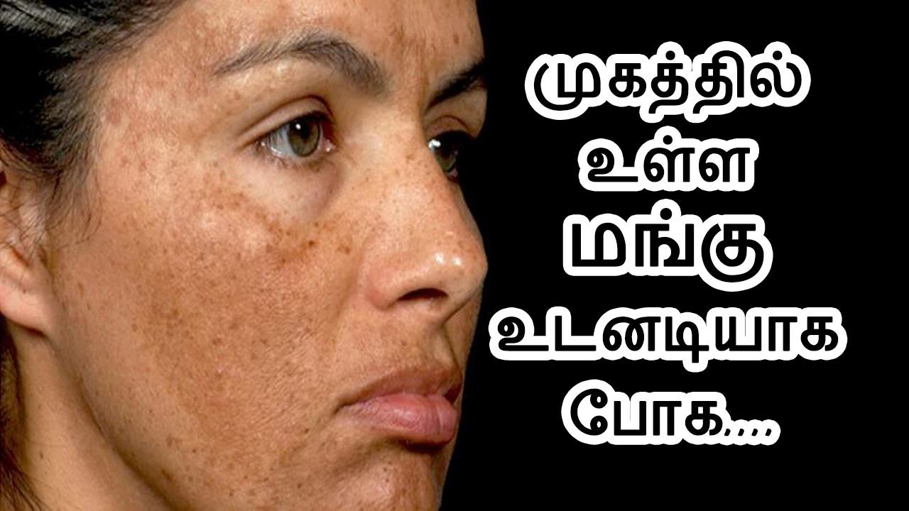 முகத்தில் உள்ள மங்கு உடனடியாக போக | How to cure Melasma/Pigmentation | How  to cure mangu |