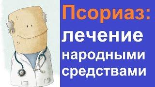 видео Рекомендации, чем лечить псориаз на ноге