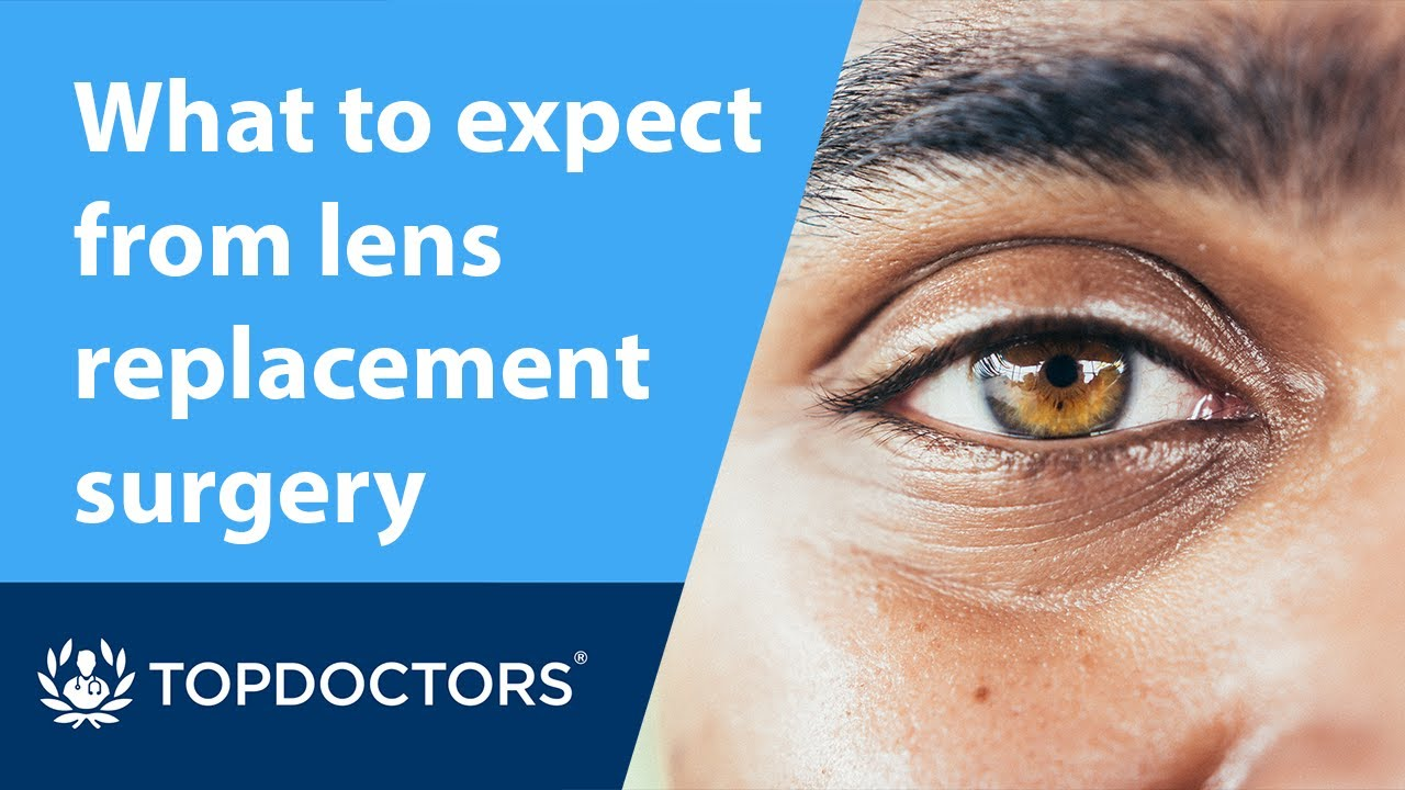 What to expect from lens replacement surgery - YouTube