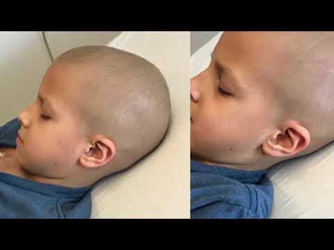 Adrian's Childhood Cancer Journey