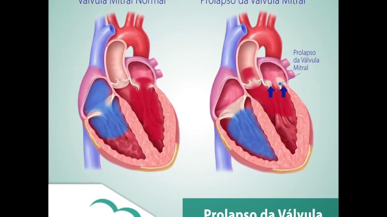Sintomas del prolapso valvular mitral