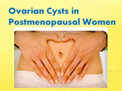ovarian-cysts-in-postmenopausal-women