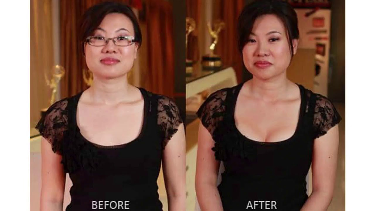 Breast Actives Before And After Review Youtube