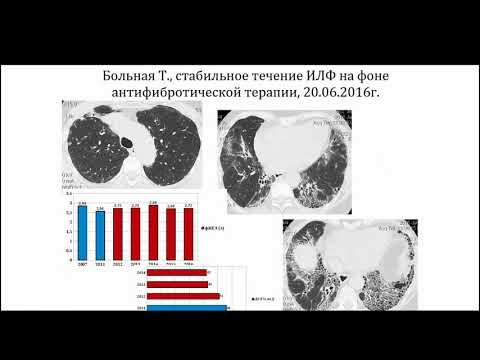 Сперанская А.А. «Лучевая диагностика фиброзирующих болезней легких»
