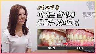 돌출입 교정 이렇게나 달라진다고?(돌출입 치아교정 과정…