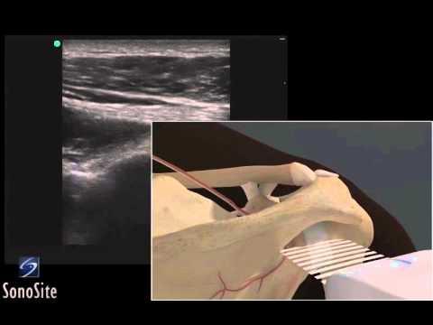 3D Lehrvideo: Ultraschalluntersuchung der hinteren Schulterkapsel ...