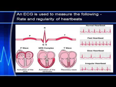 research paper on elctrocardiogram ecg National health and nutrition examination survey 2421 replacing the ecg paper electrocardiogram data facilitates the conduct of longitudinal analyses to.