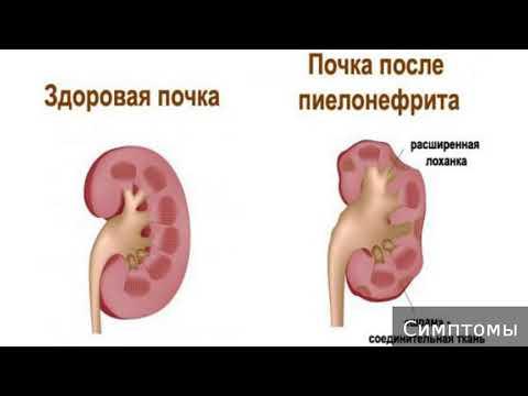 Хронический пиелонефрит. Как лечить хронический пиелонефрит.
