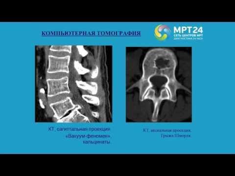 Дегенеративные изменения позвоночника на МРТ