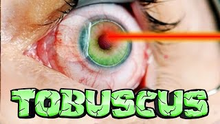 Watch My LASIK Eye Surgery LIVE (ft Tobuscus)