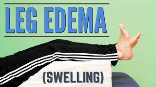 Top 7 Exercises for Leg Edema or Swelling (Program or Protocol for Edema)