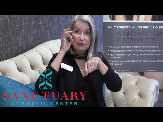 Profound non-surgical facelift-Look Younger treatment