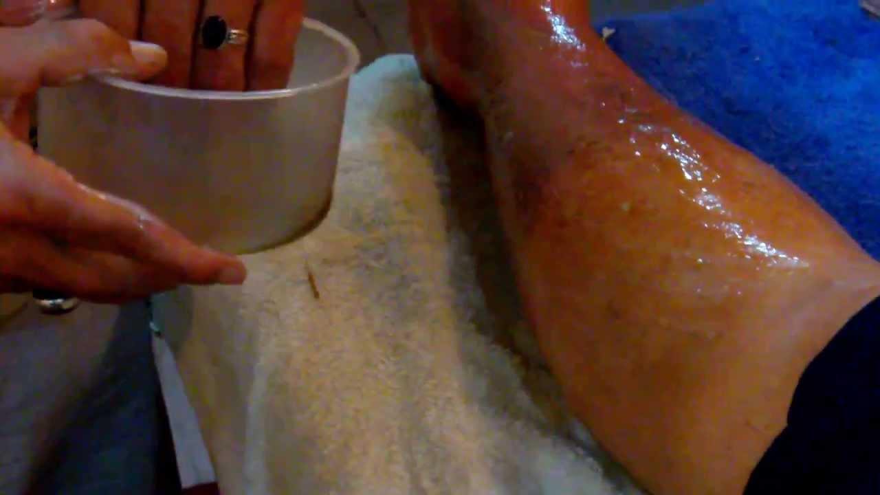 Como se cura la erisipela en la pierna