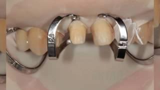 Эстетическое протезирование зубов центральной группы(, 2016-10-14T11:37:00.000Z)