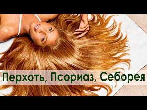 Псориаз: симптомы, причины и лечение (+ фото)
