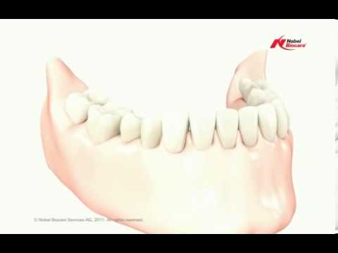Low Cost Dental Bridge in India | Missing Tooth Replacement Bangalore