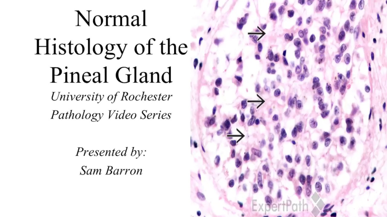 a study of pineal gland The pineal gland volume and pineal reduced pineal volume in alzheimer disease: a retrospective cross-sectional mr in our study, pineal volume showed.
