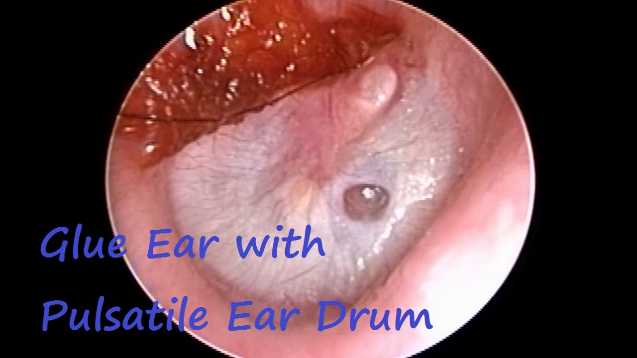 Glue Ear   Otitis Media With Effusion     Ear Blockage
