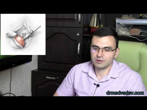 Причины симптомы и лечение рака бартолиновой железы