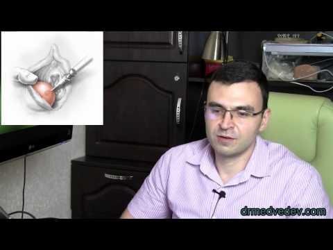 Медведев о кисте бартолиновой железы