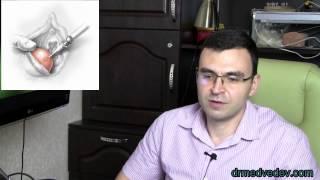 видео Как лечить бартолинит?