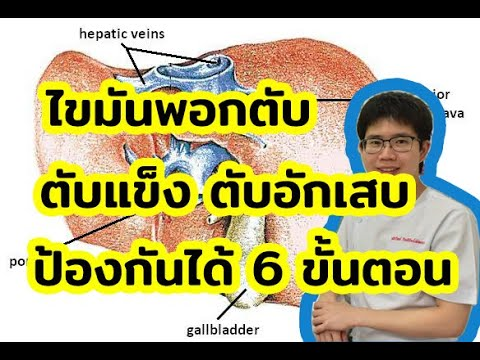 วิธีบำรุงตับ (ตับแข็ง ไขมันพอกตับ) 6 ขั้นตอน l 10นาทีกับหมอต่อ