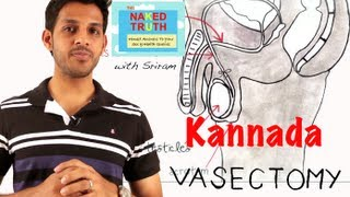 What is a Vasectomy in Kannada