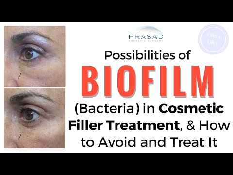 Possibilities of Biofilm (Bacterial Infection) in Cosmetic Fillers - Treatment and Prevention