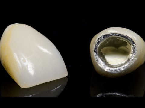 Dental Crown Placement Youtube