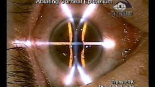 Trans PRK (Transepithelial Photorefractive Keratectomy)
