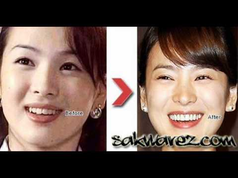Korean Stars Plastic Surgery Before And After Youtube