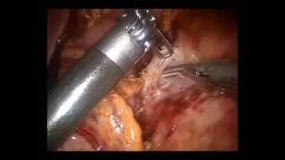 Robotic distal pancreatectomy-surgical technique