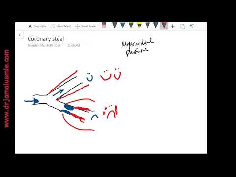 Coronary Steal Phenomenon (cardiac Steal Syndrome) - General Cardiology - Dr Jamal USMLE
