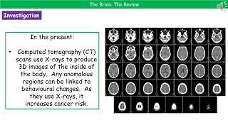 B3.1.4 The Brain Summary H