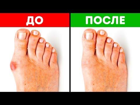 Как убрать косточку на ноге у большого