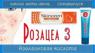101| Азелаиновая кислота (Azelaic acid) при  РОЗАЦЕА | СКИНОРЕН/АЗЕЛИК