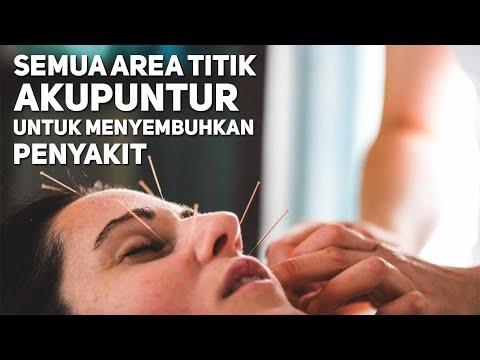 Penyakit Sembuh Dengan Menekan Titik Akupuntur Ini