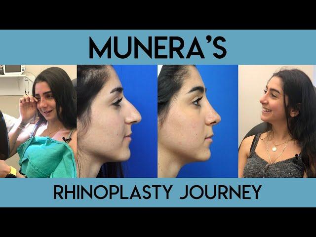 Munera's Rhinoplasty Journey
