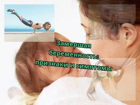 Замершая беременность: признаки и симптомы