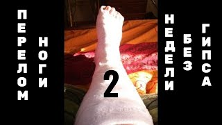 Перелом ноги_2 недели после снятия гипса(, 2015-08-01T16:15:55.000Z)