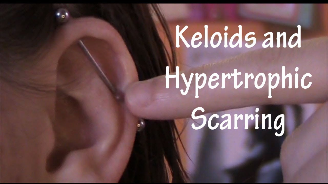 Keloids And Hypertrophic Scarring Get Rid Of It Youtube